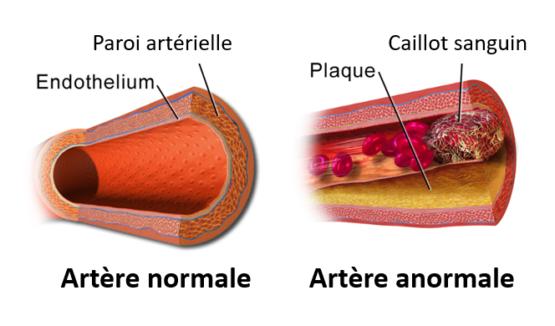 Description d'une artère normale et anormale