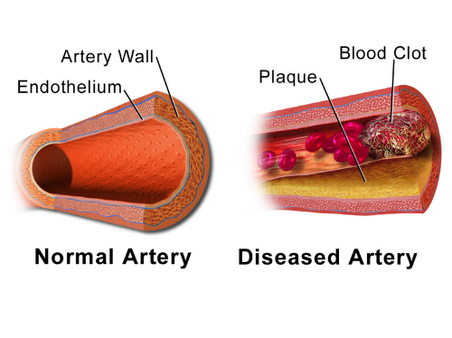Explanation of normal or problematic artery